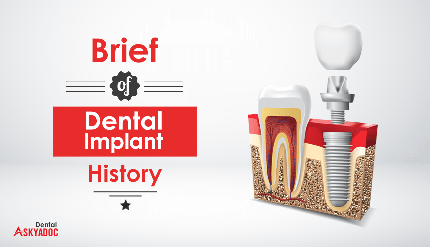 A Brief of Dental Implant History